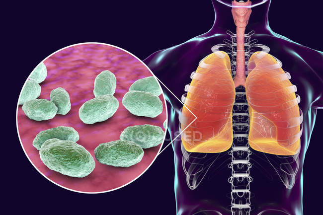Lungs pneumonia and close-up of Haemophilus influenzae bacteria, digital illustration. — Stock Photo