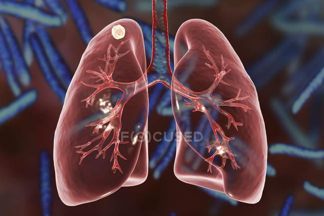 Illustrazione digitale del nodo solido nel polmone destro vicino all'apice polmonare mentre l'infezione secondaria da tubercolosi . — Foto stock