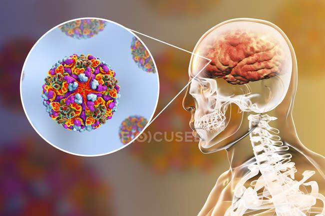 Virus de l'encéphalite équine occidentale infectant le cerveau humain, illustration numérique . — Photo de stock