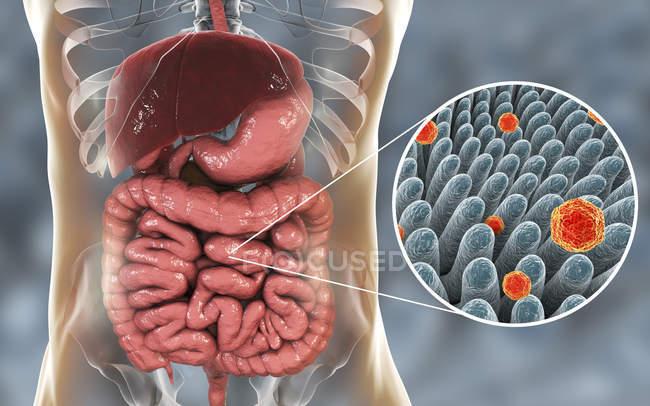 Ilustración digital del intestino y primer plano de las partículas del virus de la hepatitis A . - foto de stock