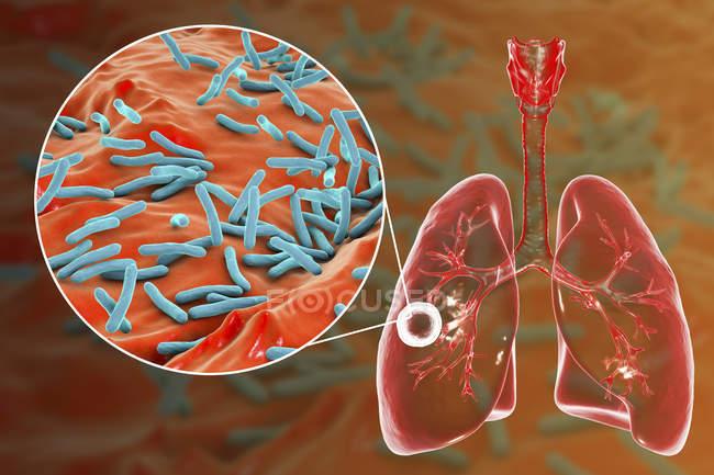 Faser-kavernöse Lungentuberkulose und Nahaufnahme von Mycobacterium tuberculosis-Bakterien. — Stockfoto