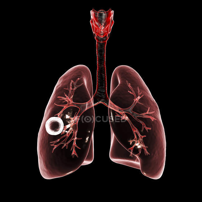 Fibrous-cavernous pulmonary tuberculosis cavity in right lung with well-formed fibrous layer. — Stock Photo