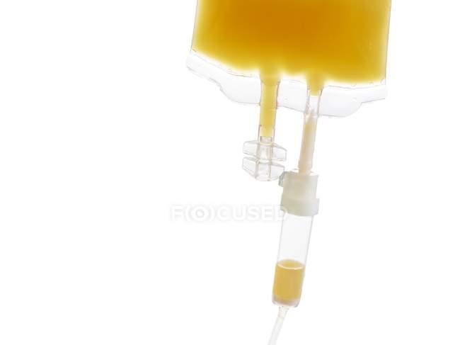 IV мішок з апельсиновим соком, студія постріл. — стокове фото