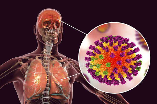 Digital illustration of complication of flu infection such as pneumonia and encephalitis and close-up of virus particle. — Stock Photo