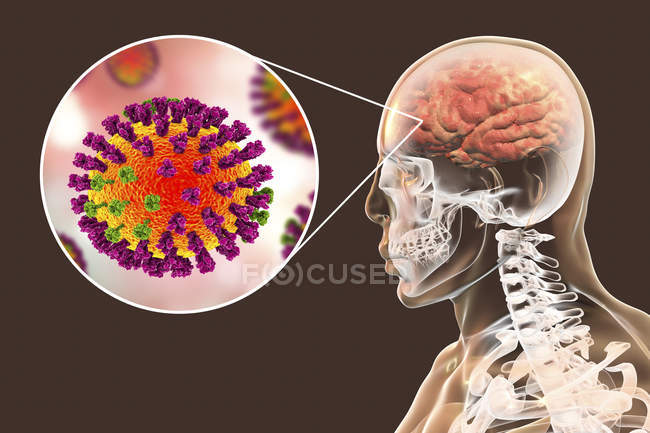 Digital illustration of complication of flu infection such as encephalitis and close-up of virus particle. — Stock Photo