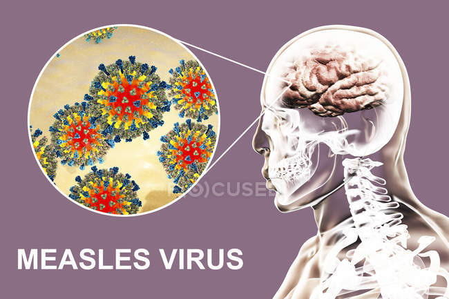Encefalite causata dal virus del morbillo, illustrazione digitale . — Foto stock