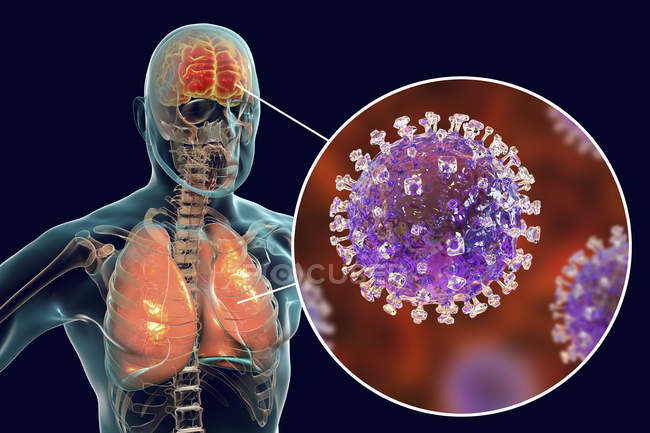 Encephalitis and pneumonia caused by Nipah zoonotic virus, digital illustration. — Stock Photo