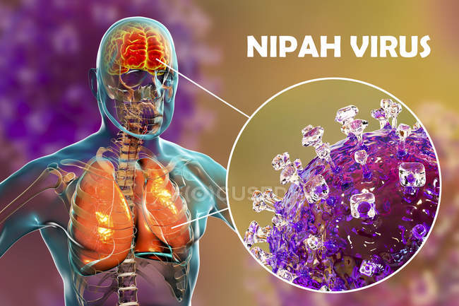 Энцефалит и пневмонии, вызванной зоонозные вирус Нипах, цифровой иллюстрации. — стоковое фото