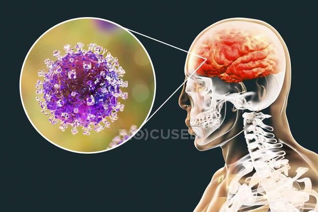 Енцефаліт, викликаних зоонозних вірус Ніпа цифровий ілюстрація. — стокове фото