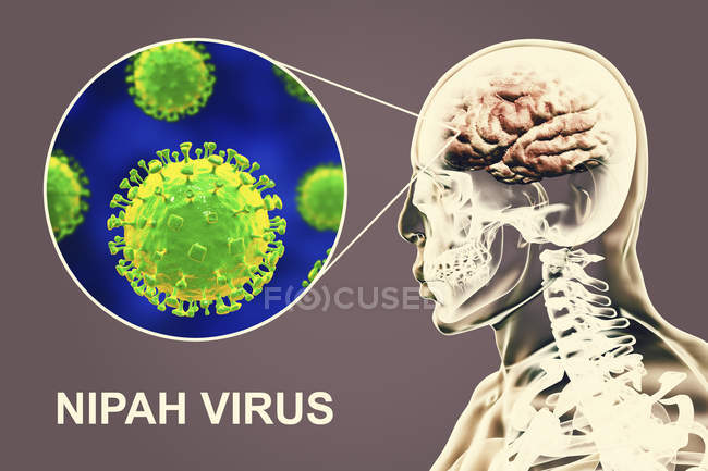 Encephalitis caused by Nipah zoonotic virus, digital illustration. — Stock Photo