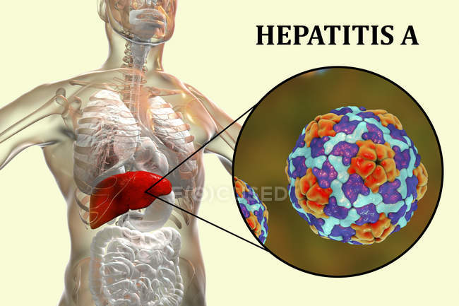 Digital artwork of silhouette with liver inflammation and close-up of hepatitis A virus. — Stock Photo