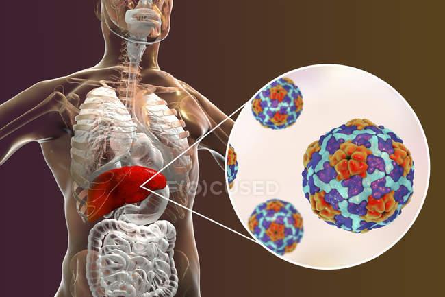 Illustration numérique de silhouette avec inflammation du foie et gros plan du virus de l'hépatite A . — Photo de stock