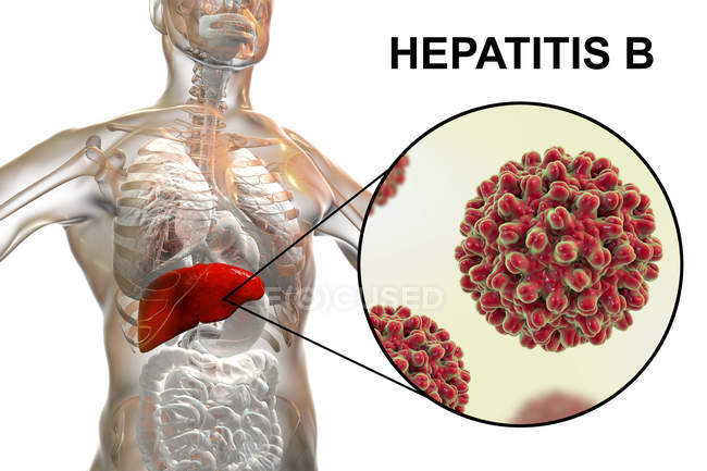 Digital illustration of silhouette with liver inflammation and close-up of hepatitis B virus. — Stock Photo