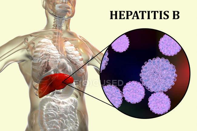 Illustration numérique de la silhouette avec inflammation du foie et gros plan du virus de l'hépatite B . — Photo de stock
