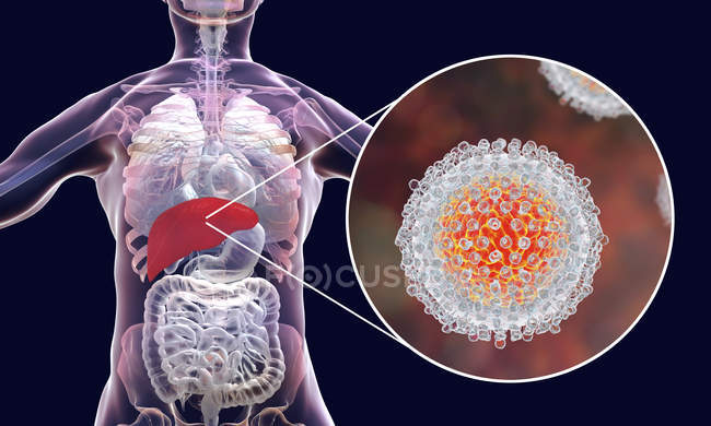 Ilustración digital de la silueta con inflamación hepática y primer plano del virión de la hepatitis C . - foto de stock