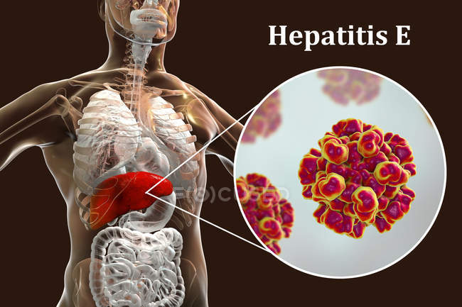 Digital illustration of silhouette with liver inflammation and close-up of hepatitis E virus. — Stock Photo