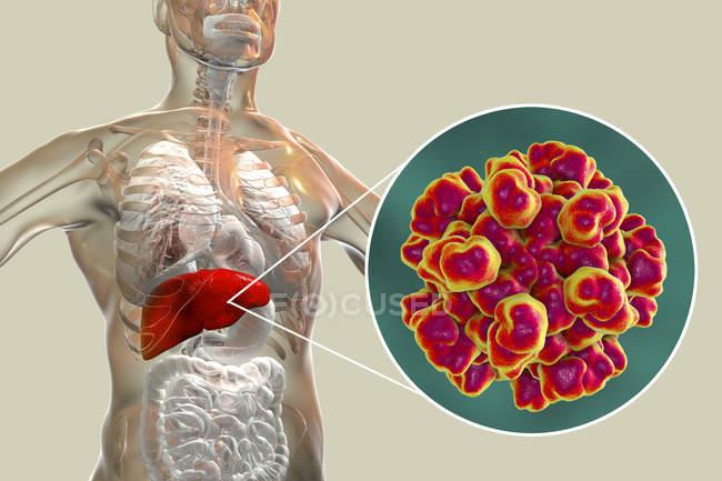 Ilustración digital de la silueta con inflamación hepática y primer plano del virus de la hepatitis E . - foto de stock