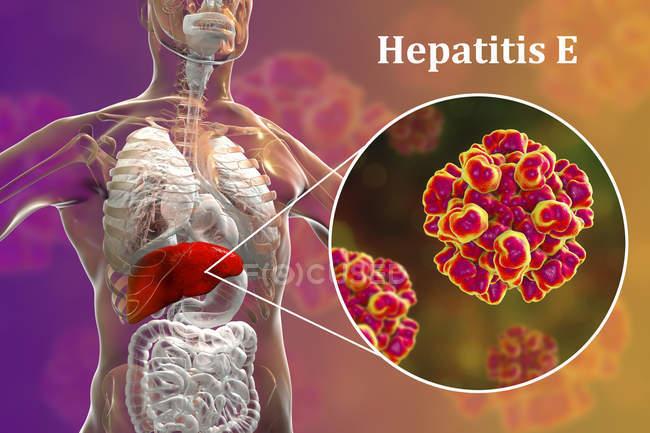 Цифровая Иллюстрация силуэт с воспаление печени и макро вируса гепатита Е. — стоковое фото
