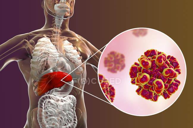 Illustration numérique de la silhouette avec inflammation du foie et gros plan du virus de l'hépatite E . — Photo de stock