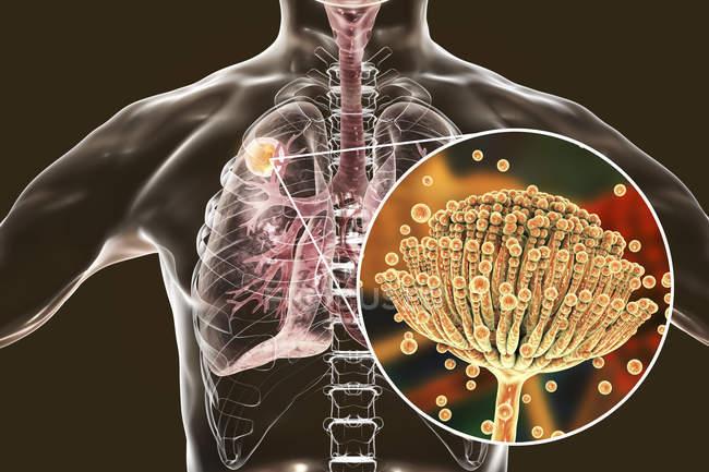 Aspergilloma легких и Макро грибов Aspergillus, цифровой иллюстрации. — стоковое фото