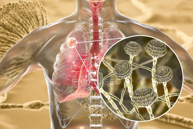Aspergiloma de los pulmones y primer plano del hongo Aspergillus, ilustración digital . - foto de stock