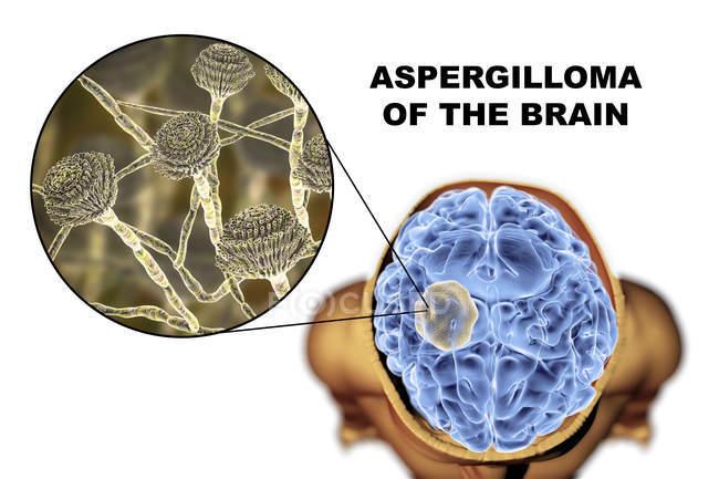 Aspergiloma del cerebro y primer plano del hongo Aspergillus, ilustración digital . - foto de stock