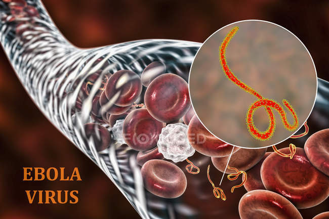 Virus dell'ebola nel sangue e primo piano dei virioni, illustrazione digitale . — Foto stock