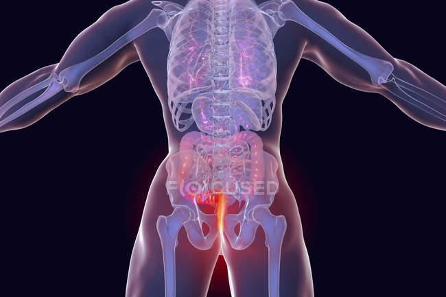 Digitale Darstellung des menschlichen Körpers mit äußeren Hämorrhoiden. — Stockfoto
