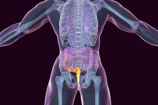 Цифровий ілюстрація людського тіла з зовнішнього геморою. — стокове фото