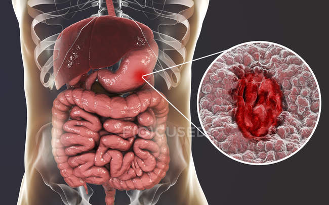 Human silhouette with gastric ulcer of stomach, illustration. — Stock Photo