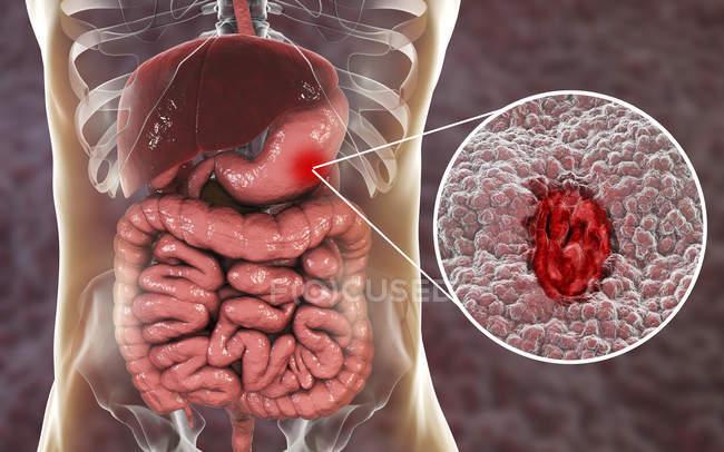 Людського силует з виразкова хвороба шлунку, ілюстрація. — стокове фото