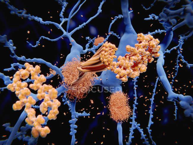Illustration des Prozesses, der zur Bildung von Amyloid-Protein-Plaques auf Neuronen bei Alzheimer führt. — Stockfoto