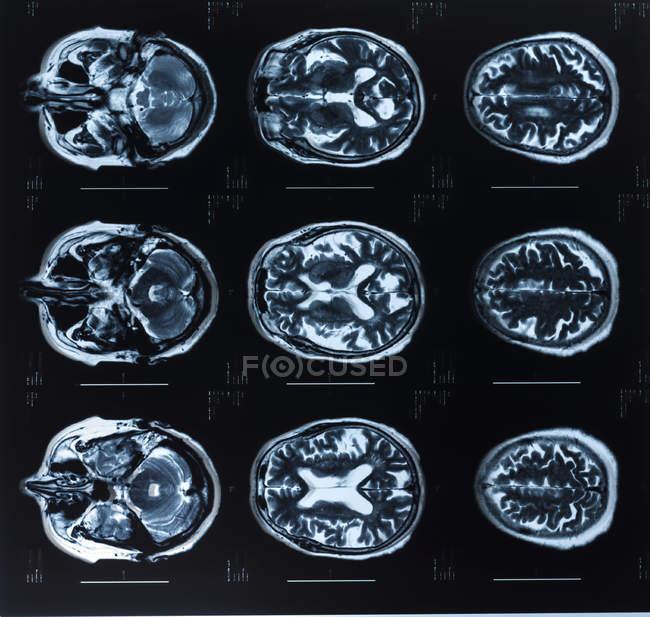 Imágenes por resonancia magnética del cerebro humano . - foto de stock