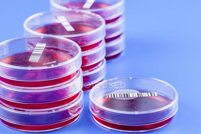 Gros plan sur les géloses à codes à barres pour la recherche biologique . — Photo de stock