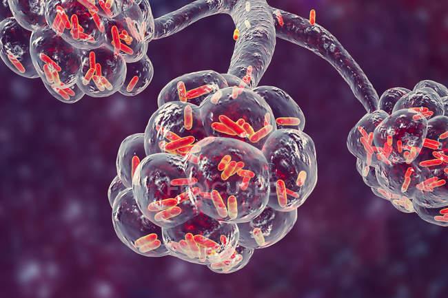 Digitale Illustration von stäbchenförmigen Bakterien in Lungenbläschen, die bakterielle Lungenentzündung verursachen. — Stockfoto