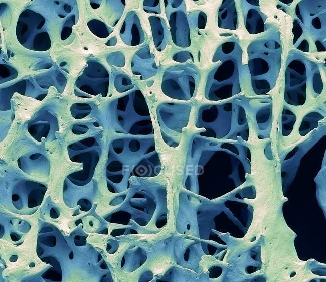 Coloured scanning electron micrograph of human cancellous spongy bone tissue. — Stock Photo