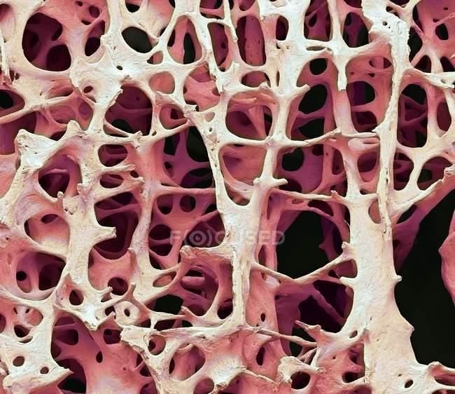 Color micrografía electrónica de tejido óseo esponjoso esponjoso humano. - foto de stock