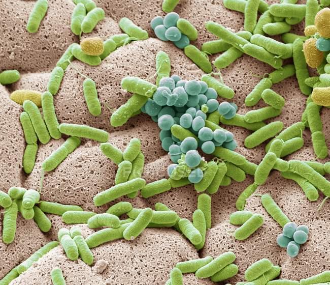 Micrografia eletrônica de varredura colorida de bactérias cultivadas a partir de pano de prato usado . — Fotografia de Stock
