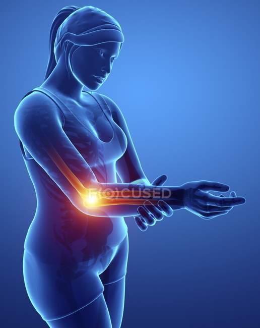 Silhueta feminina com dor de cotovelo, ilustração digital. — Fotografia de Stock