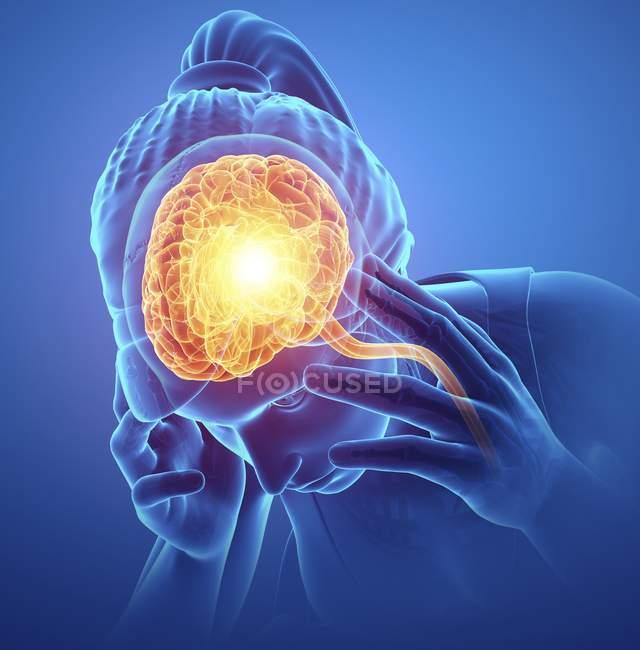 Женский силуэт с головной болью, цифровой иллюстрации. — стоковое фото