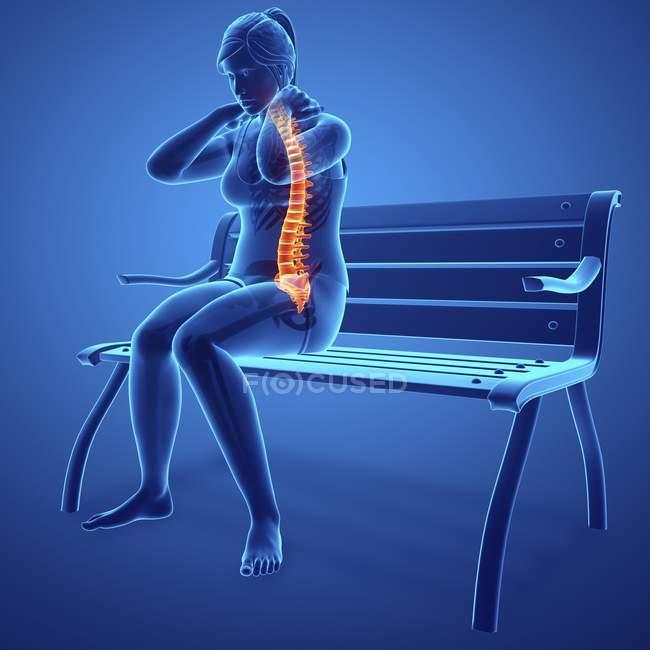 Assis sur banc silhouette féminine avec mal de dos, illustration numérique . — Photo de stock