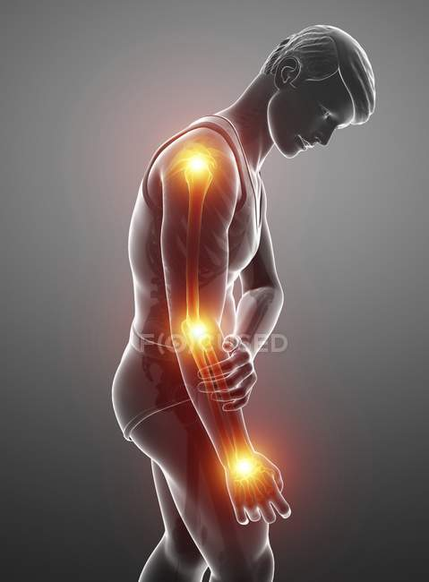 Male silhouette with arm pain, digital illustration. — Stock Photo