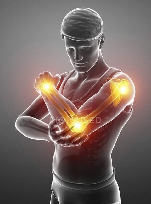 Silhueta masculina com a dor do braço, ilustração digital. — Fotografia de Stock