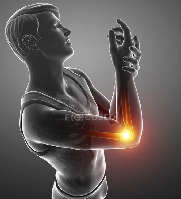 Silhueta masculina com dor de cotovelo, ilustração digital. — Fotografia de Stock