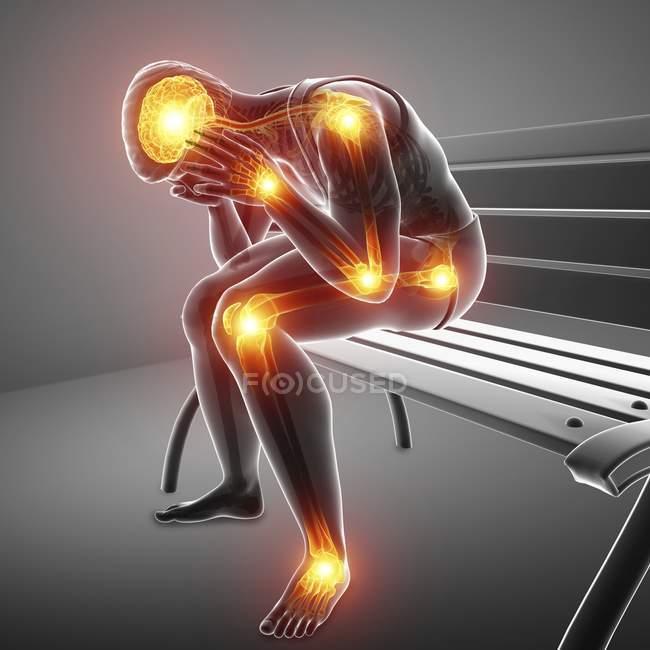 Sentado na silhueta masculina de banco com dores nas articulações, ilustração digital. — Fotografia de Stock