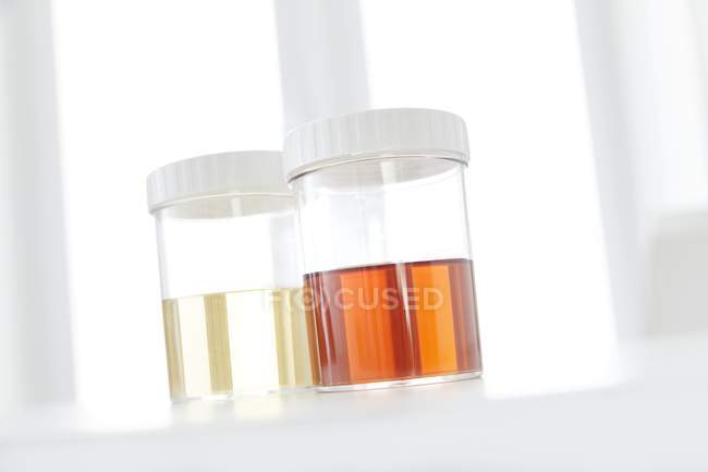 Blood in human urine in sample pots, studio shot. — Stock Photo