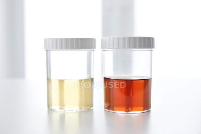 Sang dans l'urine humaine dans des pots d'échantillons, plan studio . — Photo de stock