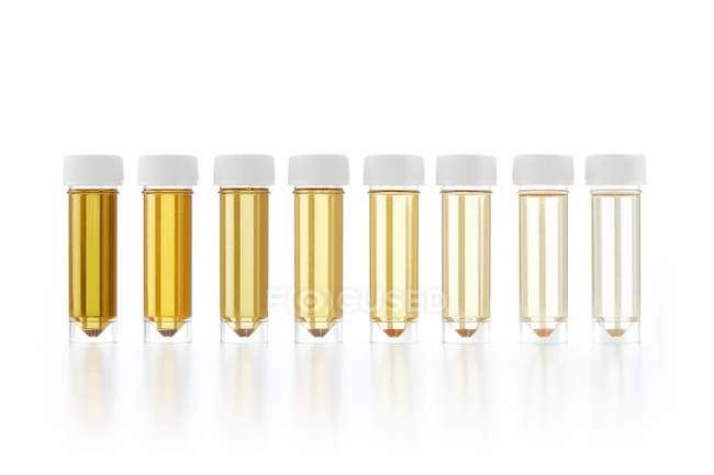 Test tubes with urine samples for analysis on white background, studio shot. — Stock Photo