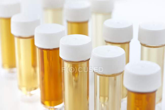 Test tubes with urine samples for analysis, studio shot. — Stock Photo