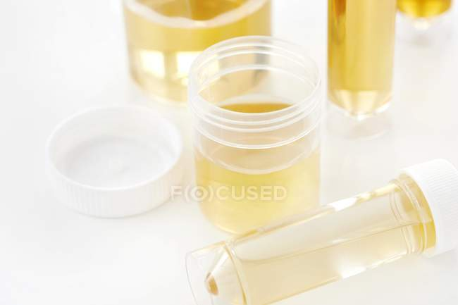 Urine samples in containers for analysis, studio shot. — Stock Photo